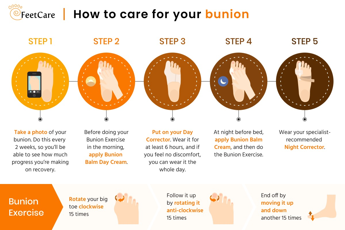infographic illustrating how to care for your bunion